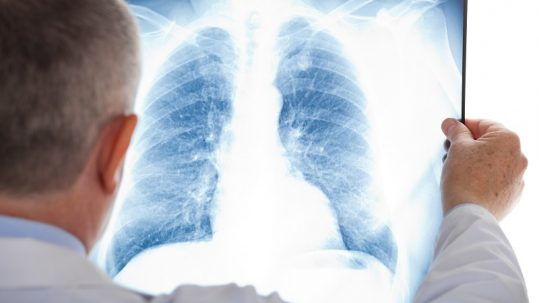 Image-guided Video-assisted Surgery Helps Remove Small Lung Masses